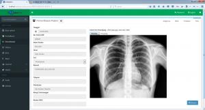 Update Fitur Software Dokter Praktek DokterPro Versi 1 - rontgen